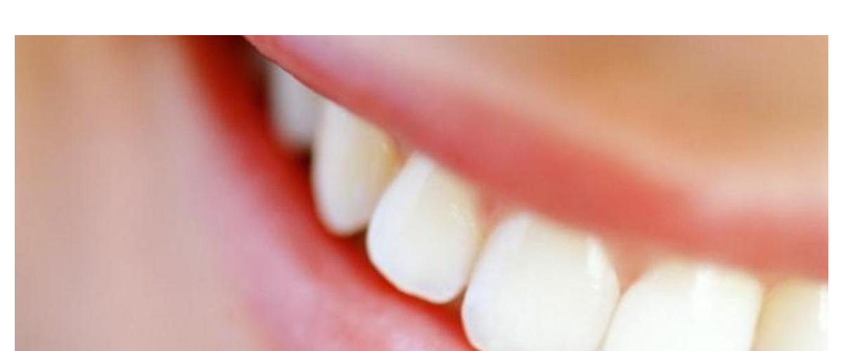 Sorriso Escova Dental